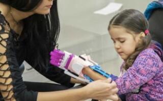 Con impresoras 3D, la UNLaM fabrica manos ortopédicas